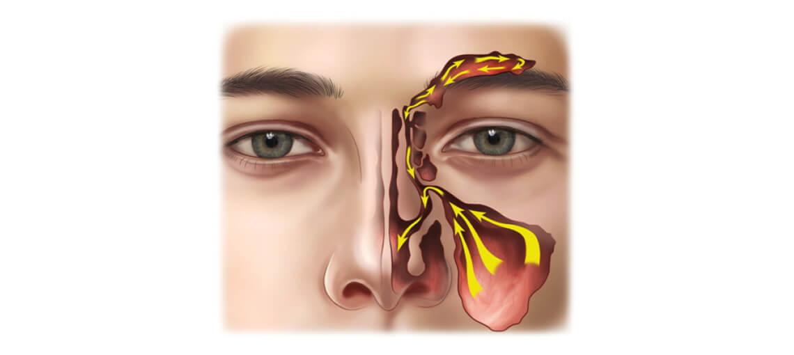Øre-næse-halsklinikken Middelfart